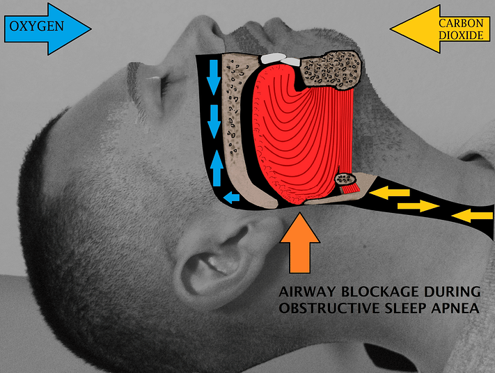 Airway_obstruction.png