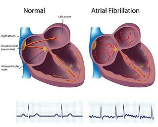 atrial fibrillation, sleep apnea, and CPAP