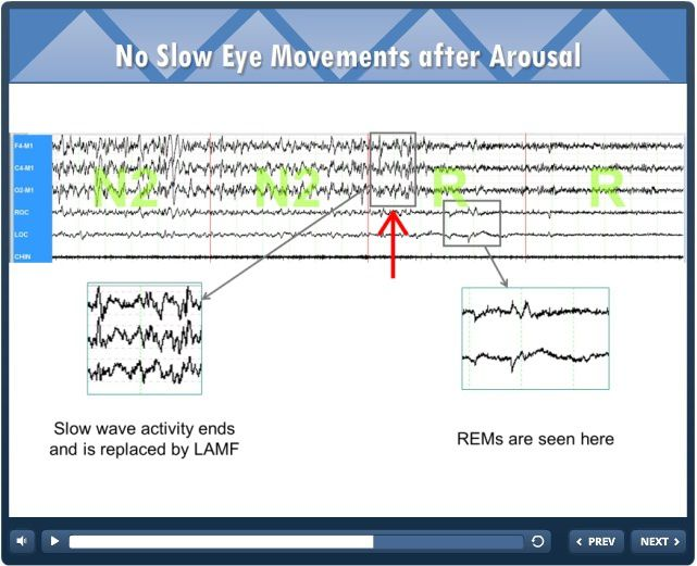 no slow eye movements after arousal